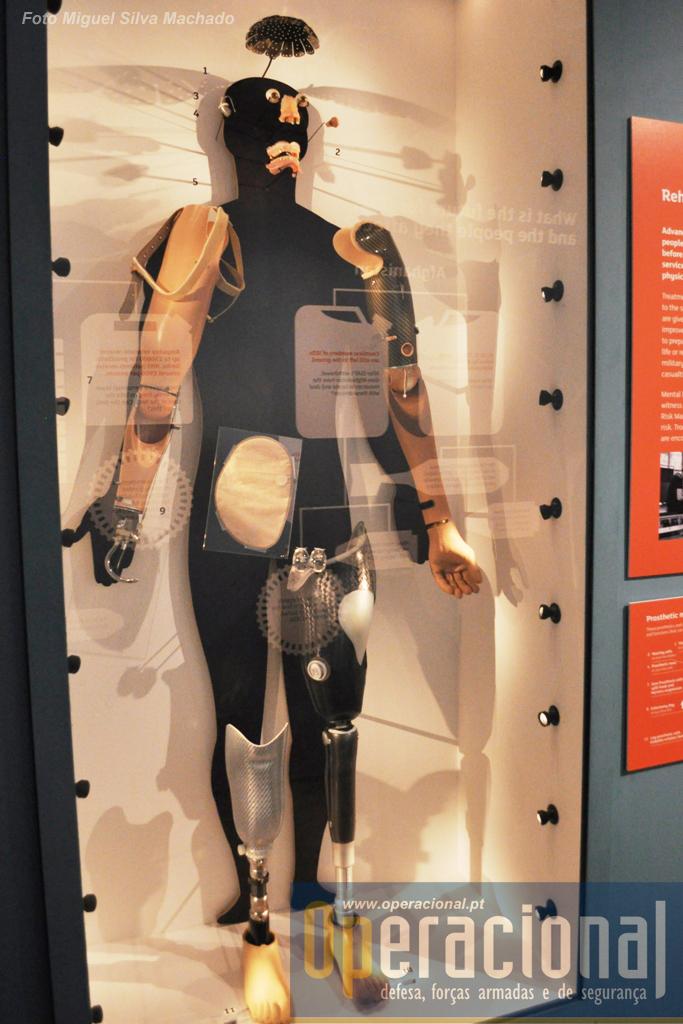 O que a tecnologia hoje já consegue fazer em termos de próteses.